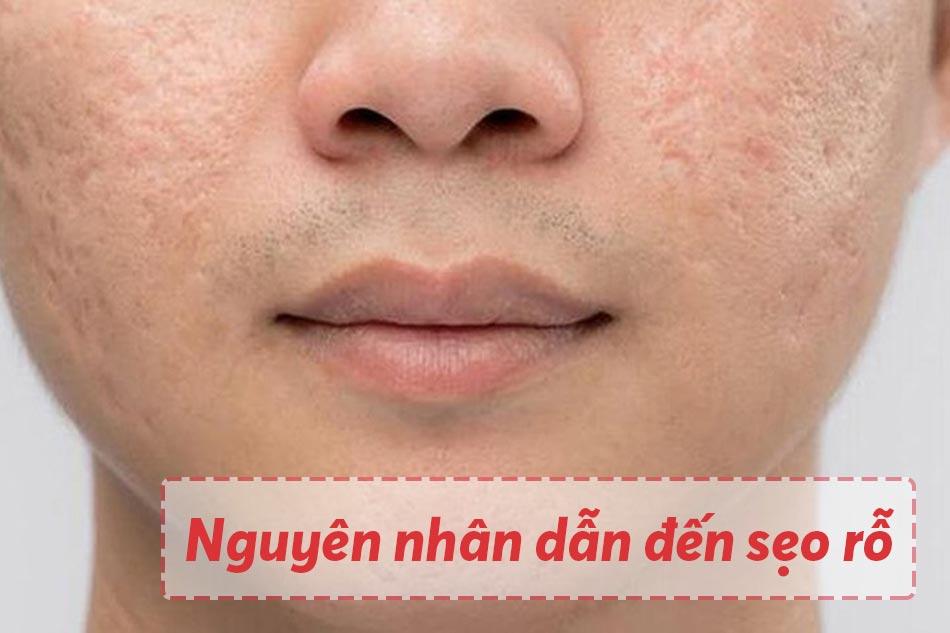 Nguyên nhân dẫn đến tình trạng sẹo rỗ