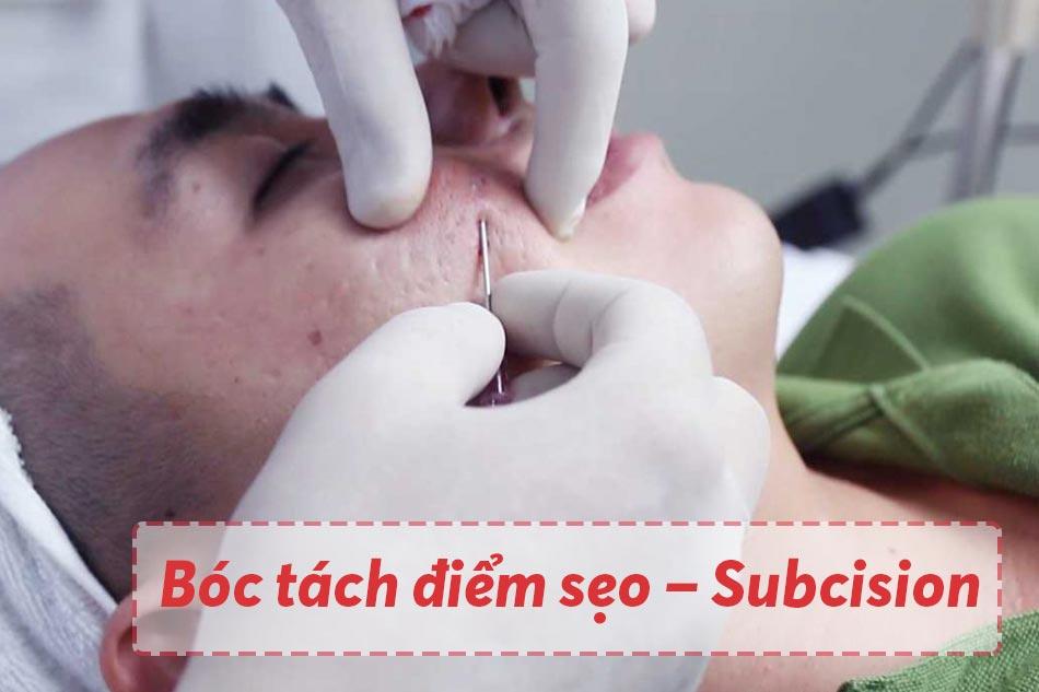 Bóc tách điểm sẹo – Subcision