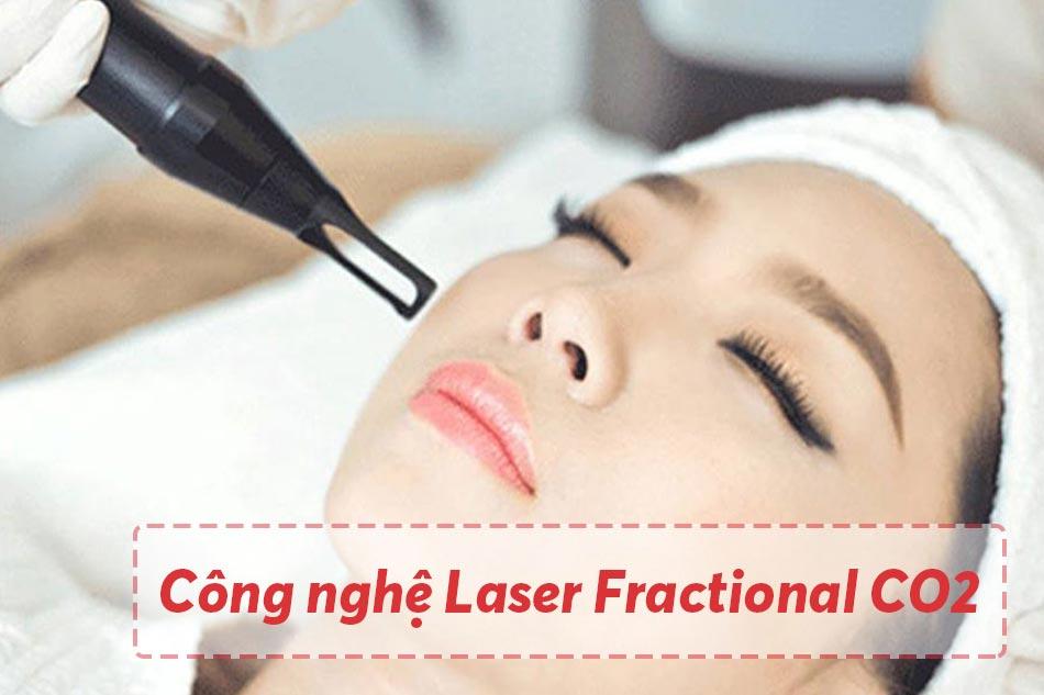 Điều trị bằng công nghệ Laser Fractional CO2